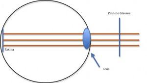 how-pinhole-glasses-work